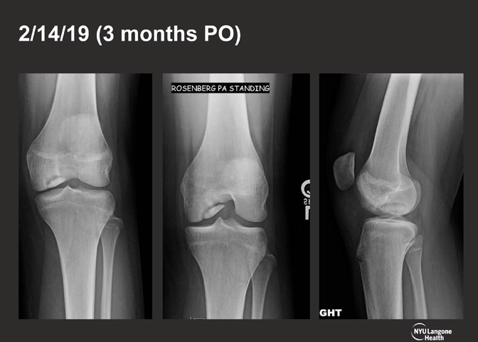 Cartilage Case of the Month - KM